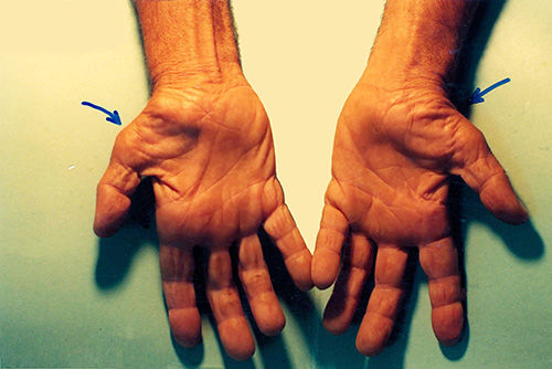carpal-tunnel-syndrome-1