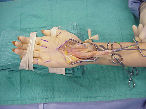 carpal-tunnel-syndrome-2