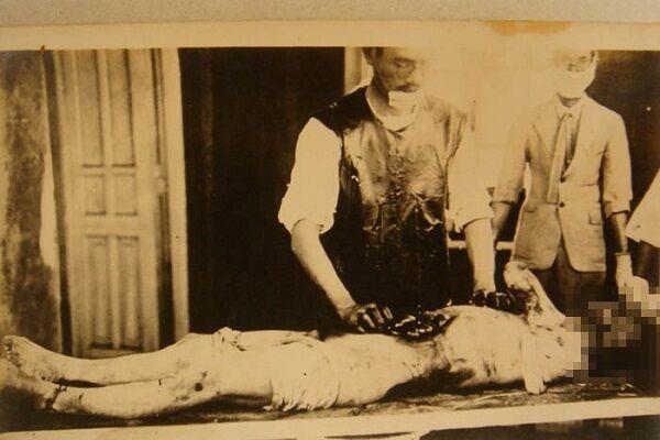 Eksperimen Unit 731 9aa9c