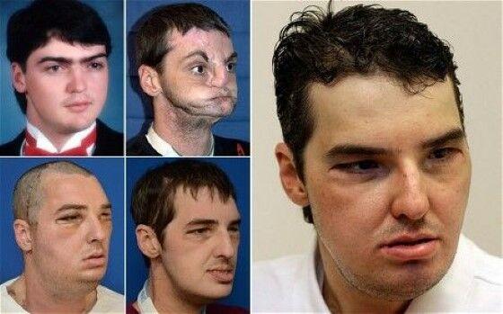 Transplantasi Wajah 1c945