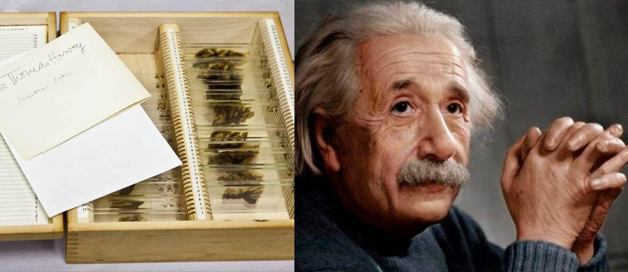 Otak Albert Einstein 9bf83