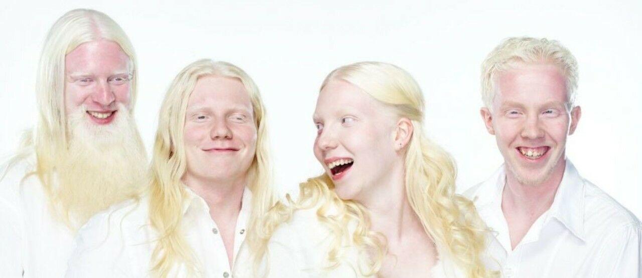 Albino 82ce9