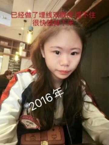 Xiao Z Na Na Sebelum Operasi 31fe3