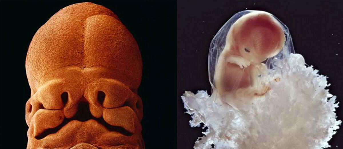 Wow! Fotografer ini Membuat Foto Proses Bagaimana Bayi Tercipta