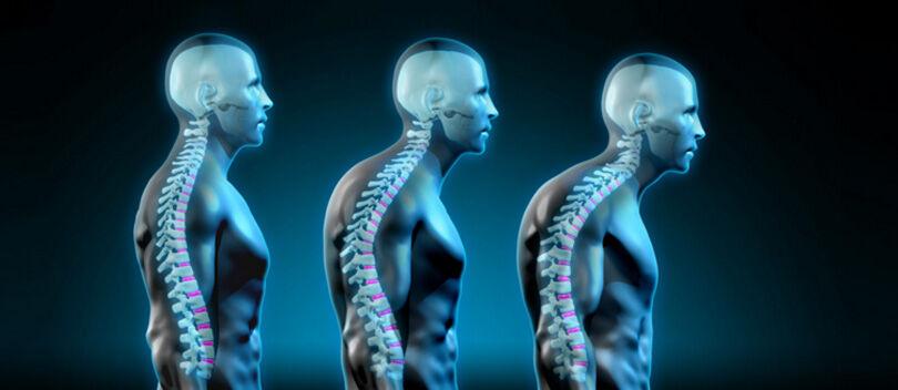 Cara Memperbaiki Postur Tubuh Bungkuk Akibat Terlalu Lama Di Depan Gadget