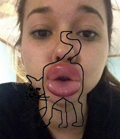 Bahaya Selfie Bibir Manyun 9