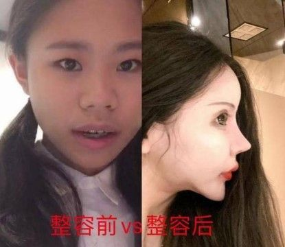 Xiao Z Na Na Before After 1fc73