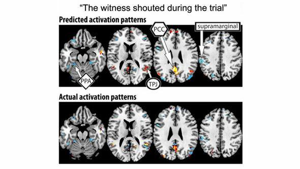 Komputer Memprediksi Aktivitas Otak Manusia
