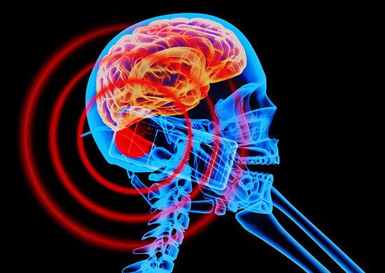 Radiasi Smartphone Mengganggu Otak
