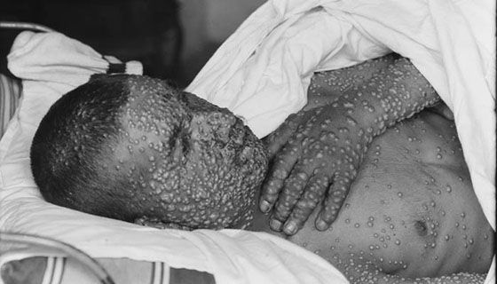 Smallpox 3868b