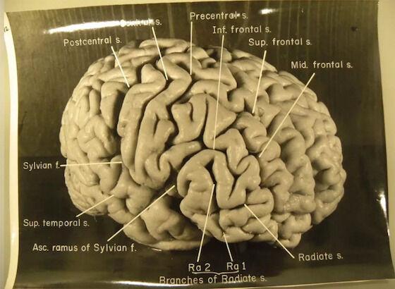 Iq Otak Albert Einstein 1bf25