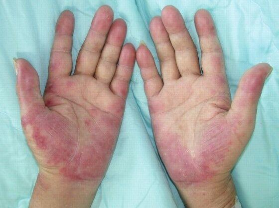 Penyakit Mematikan Disebabkan Teknologi Modern 1 A934d