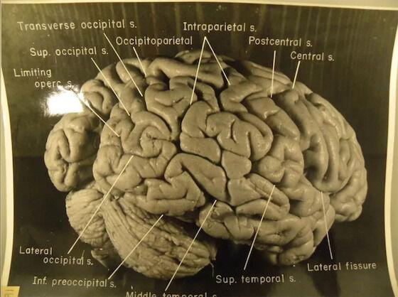 Otak Albert Einstein Dicuri 74fe4