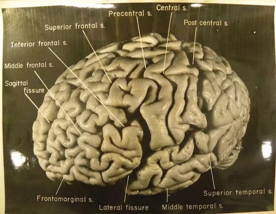 Harga Otak Albert Einstein 36dba