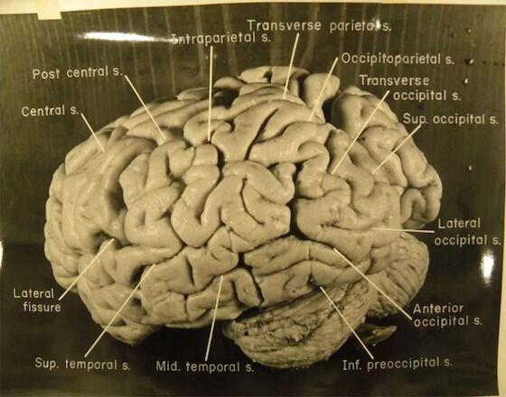Kehebatan Otak Einstein 77ea7