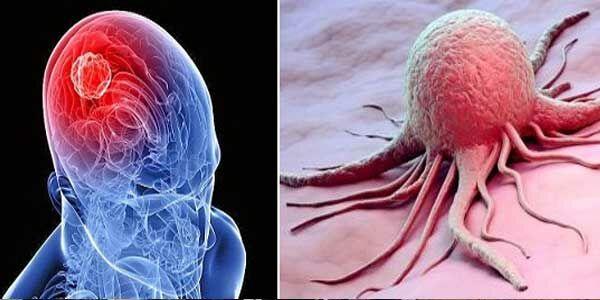 Tumor Otak F457b