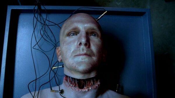 Transplantasi Kepala 80444