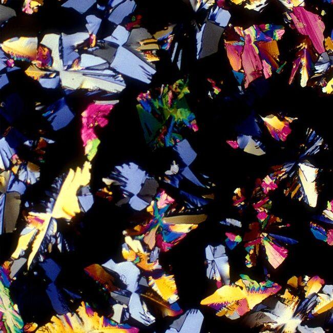Minuman Beralkohol Dilihat Dari Mikroskop 18