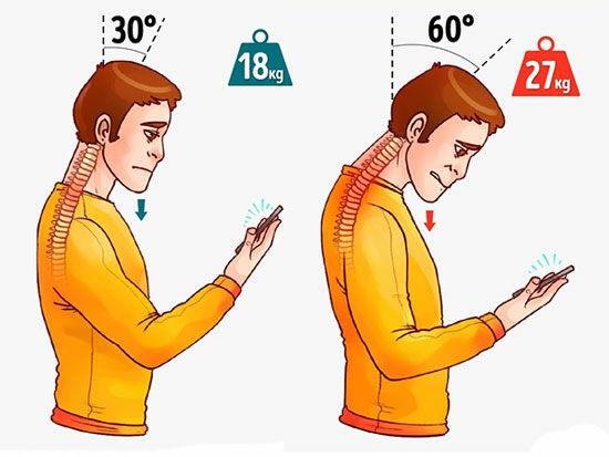 Bungkuk Karena Smartphone